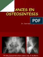 Avances_osteosintesis