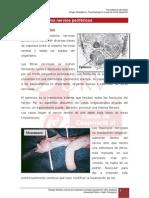 4.3. Lesion de Los Nervios Perifericos