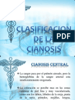 Semio Expo Grupo 7.- cianosis clasificacion