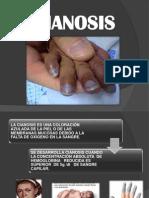 Expo Semio Grupo7.- cianosis1