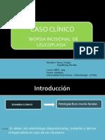 Seminario Leucoplasia Final