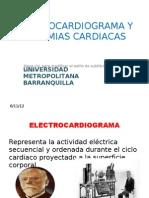 Arritmias y ECG