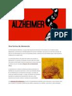 Todo sobre el Alzheimer