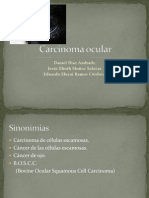 Carcinoma Ocular[1]