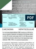 Tumores del hígado