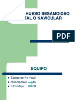 Rx Del Hueso Sesamoideo Distal o Navicular[1]