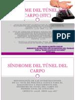 Sindrome de Tunel Del Carpo