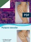 Purpura Vascularpresentacion Final