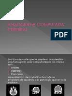 clinicaTACcereb-12