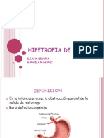 Hipetrofia de Piloro