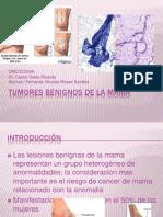 Tumores Benignos de La Mama