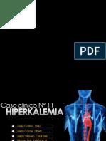 Hiperkalemia Fp
