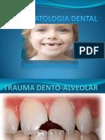 Trauma Alveolo Dental