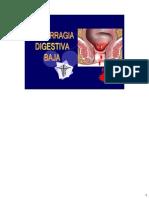 Hemorragia Digestiva Baja Expo