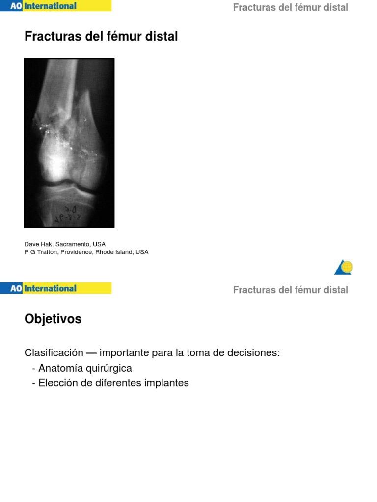 Bonito Lo Que Es Distal En La Anatomía Viñeta - Imágenes de Anatomía ...