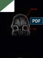 Coronal MRI Saggital Scans (Front to Back)