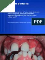 21. Immediate Denture