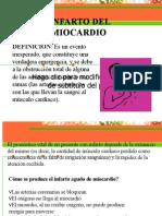 Infartyoo de Miocardio