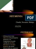 10Neumonia