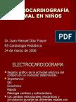 EKG en niños