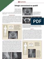 Dicas de Radiologia Convencional No Quadril