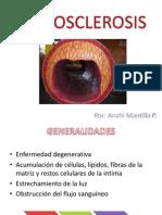 A Tero Sclerosis