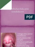 Presentation Orofaring dan diet Post Tonsillectomy