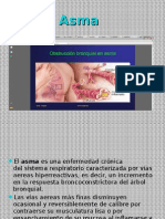 Asma presentacion