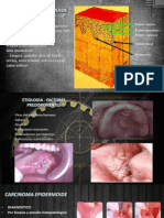 Caso Clinico - Carcinoma