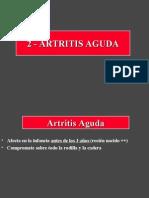 2- Artritis aguda