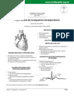 infarto intraoperatorio