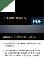 PELVIOLITHIASIS