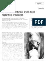 Crown-root fracture of lower molar – restorative procedures