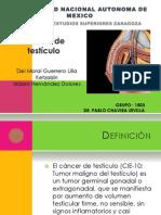 cáncer testículo