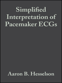 Simplified Interpretation of Pacemaker ECGs