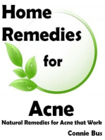 Home Remedies for Acne: Natural Remedies for Acne that Work
