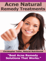 Acne Natural Remedy Treatments