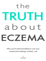The Truth About Eczema