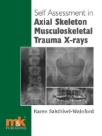 Self Assessment in Axial Skeleton Musculoskeletal Trauma X-rays