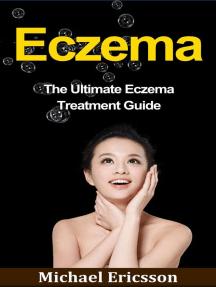 Eczema: The Ultimate Eczema Treatment Guide