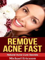 Remove Acne Fast