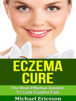 Eczema Cure