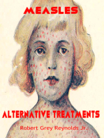 Measles Alternative Treatments