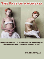 The Face of Anorexia