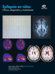 Epilepsia en niños: Clínica, diagnóstico y tratamiento