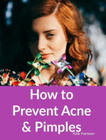 How to Prevent Acne & Pimples