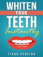 Whiten Your Teeth Instantly