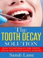 The Tooth Decay Solution