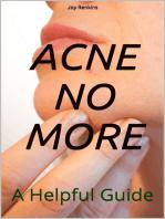 Acne No More;A Helpful Guide