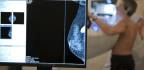 OB-GYNs Give Women More Say In When They Have Mammograms